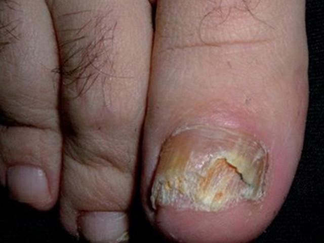 El hongo sobre las uñas de los pies que curar los medios públicos