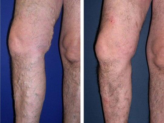 Die Behandlung die vaskulösen Erkrankungen der unteren Gliedmaßen die Symptome