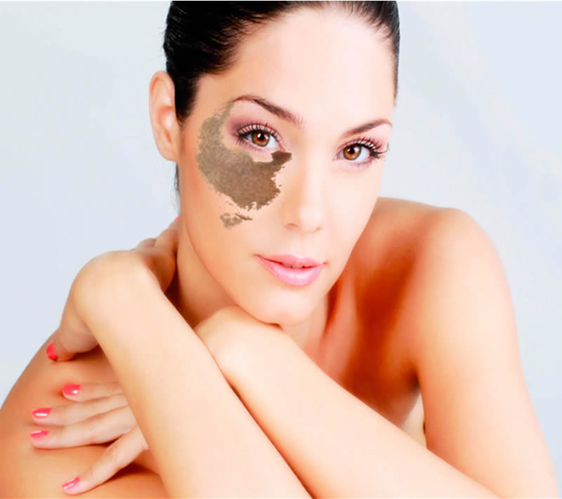 SKIN LASER CLINIC - MEDICINE Advanced Aesthetics | Nevus de ota - SKIN ...
